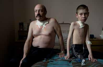 Minsk, 2005. Oleg Shapiro (54) y Dima Bogdanovich (13) son operados por cáncer de tiroides.